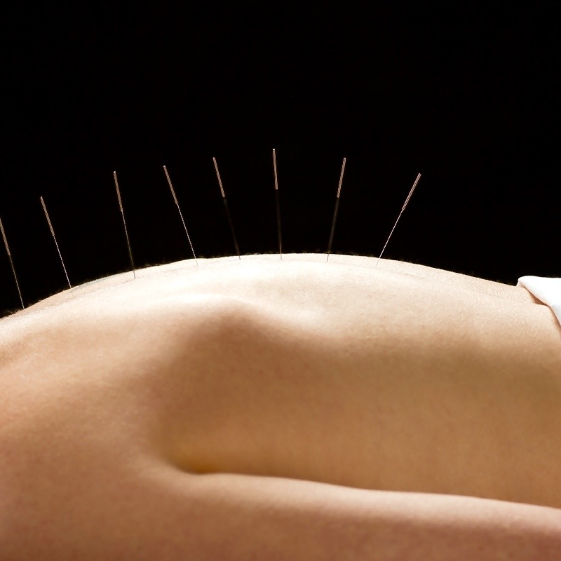 Acupuncture and Cupping